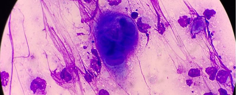 Nőgyógyászati fertőzések
